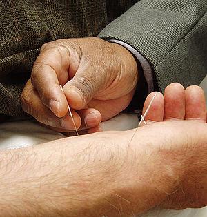English: Basic Acupuncture.